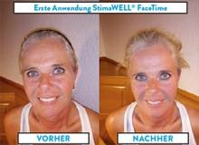 face time beauty Testemonial heidi